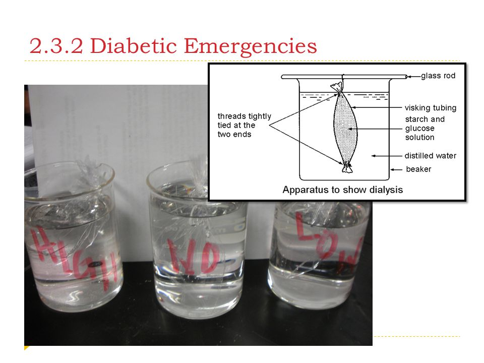 2.3.2 Diabetic Emergencies