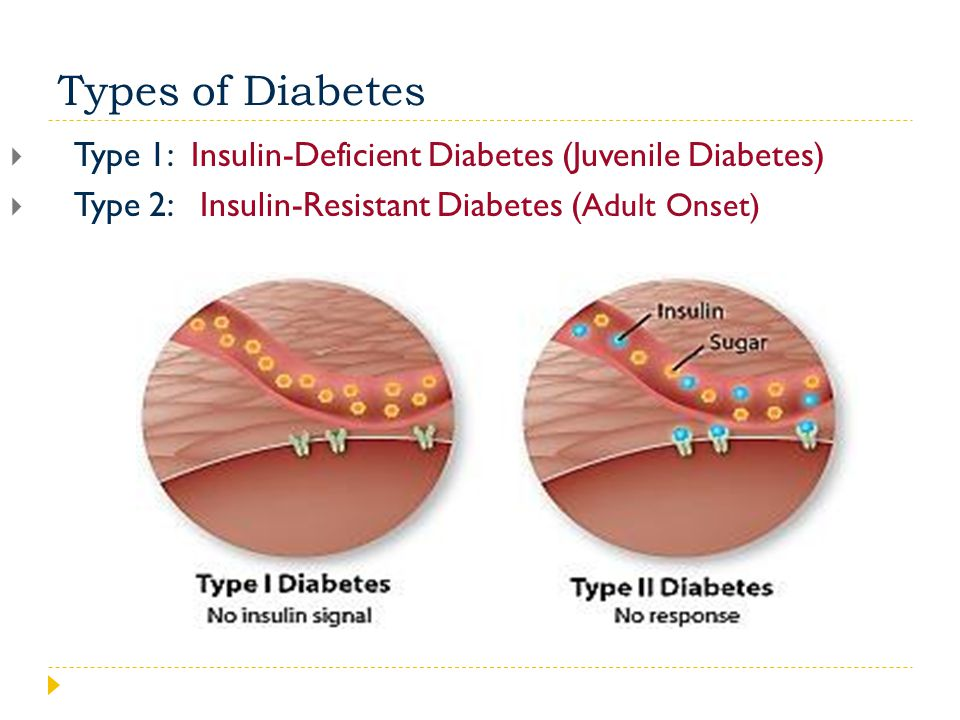 Name of PowerPoint Name of Course. Name of Lesson. Types of Diabetes. Type 1: Insulin-Deficient Diabetes (Juvenile Diabetes)