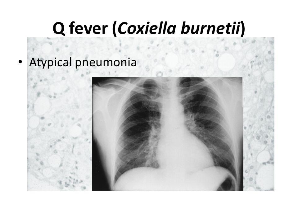Q fever (Coxiella burnetii)