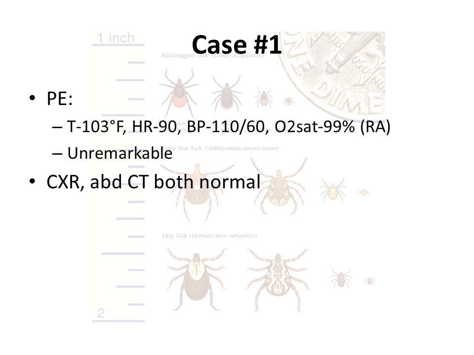 Case #1 PE: CXR, abd CT both normal