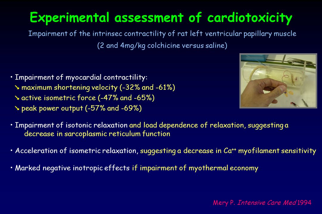 Experimental assessment of cardiotoxicity