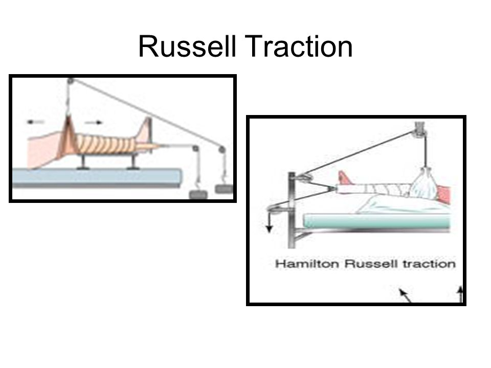 Russell Traction