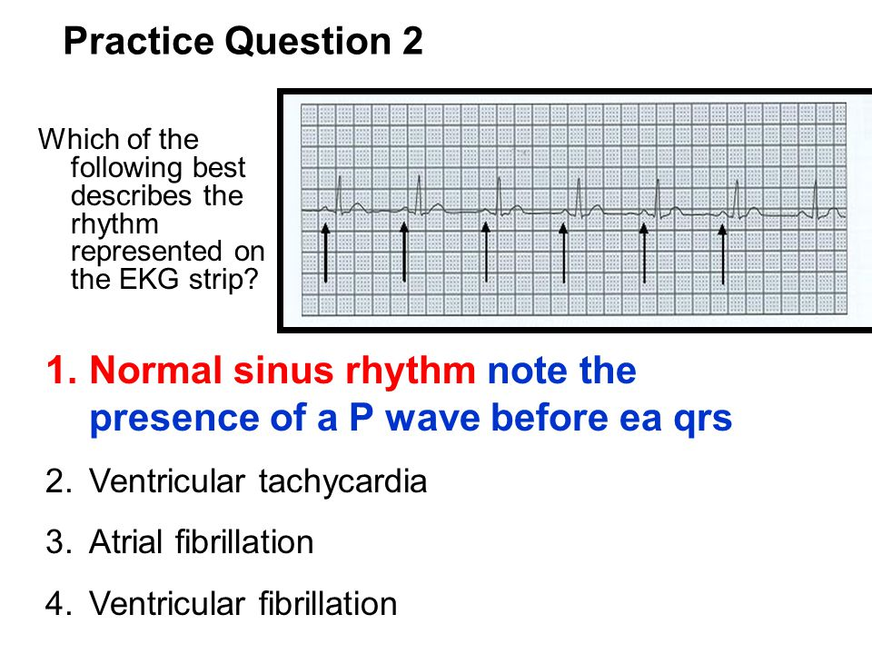 Normal sinus rhythm note the presence of a P wave before ea qrs
