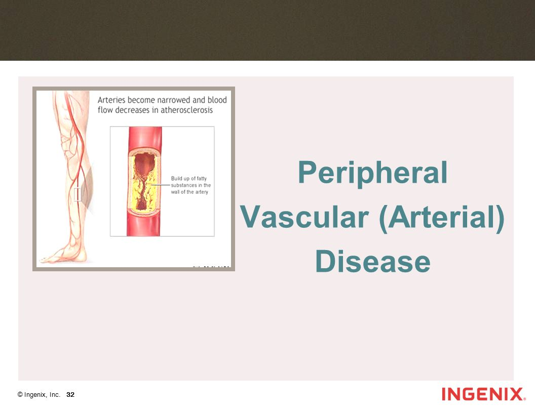 Peripheral Vascular (Arterial) Disease