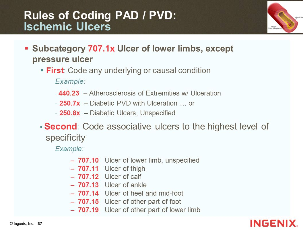 Rules of Coding PAD / PVD: Ischemic Ulcers