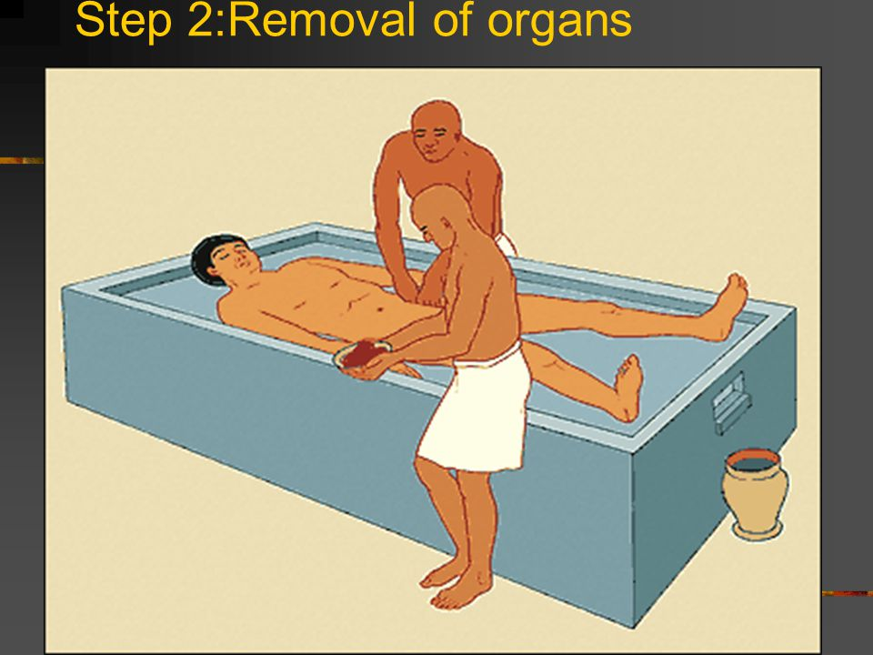 Step 2:Removal of organs