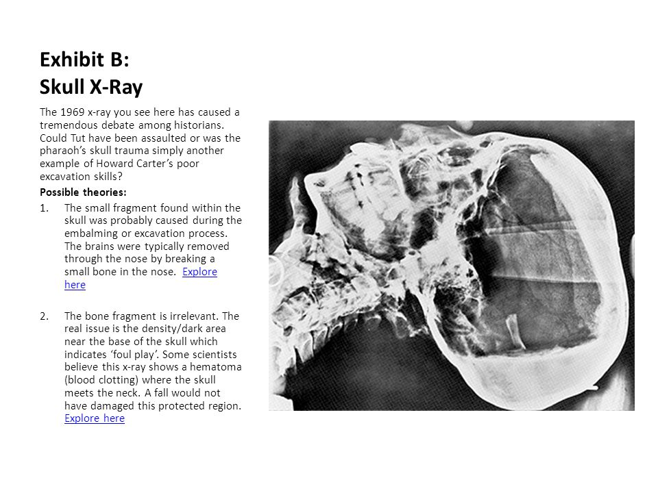 Exhibit B: Skull X-Ray