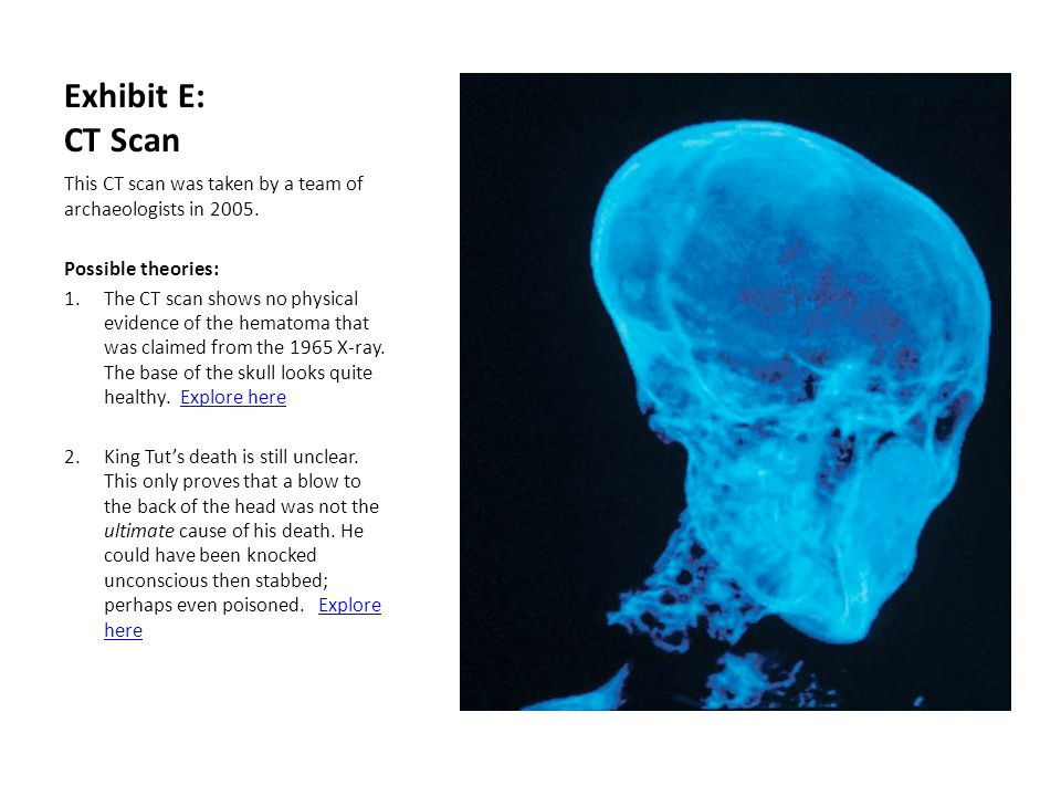 Exhibit E: CT Scan This CT scan was taken by a team of archaeologists in 2005. Possible theories: