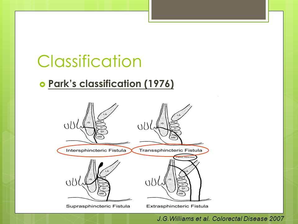 Classification Park's classification (1976)