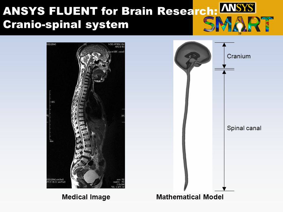 ANSYS FLUENT for Brain Research: Cranio-spinal system