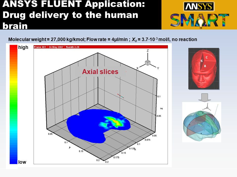 ANSYS FLUENT Application: Drug delivery to the human brain