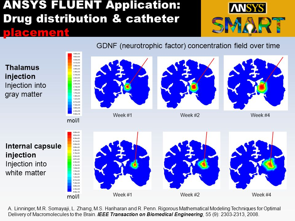 ANSYS FLUENT Application: Drug distribution & catheter placement
