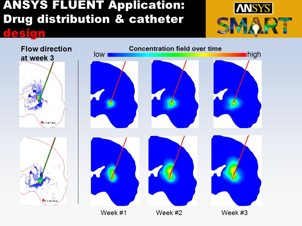 ANSYS FLUENT Application: Drug distribution & catheter design
