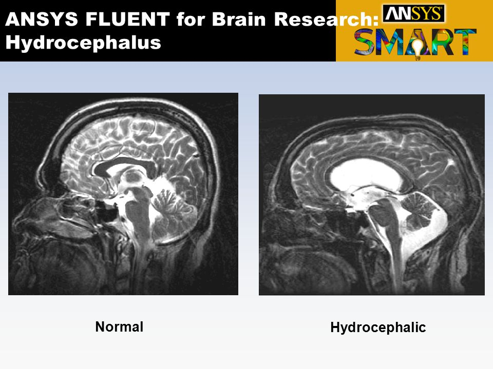 ANSYS FLUENT for Brain Research: Hydrocephalus