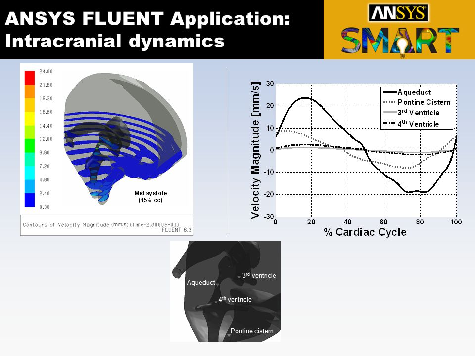 ANSYS FLUENT Application: Intracranial dynamics