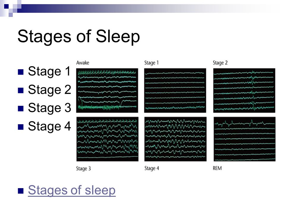 Stages of Sleep Stage 1 Stage 2 Stage 3 Stage 4 Stages of sleep