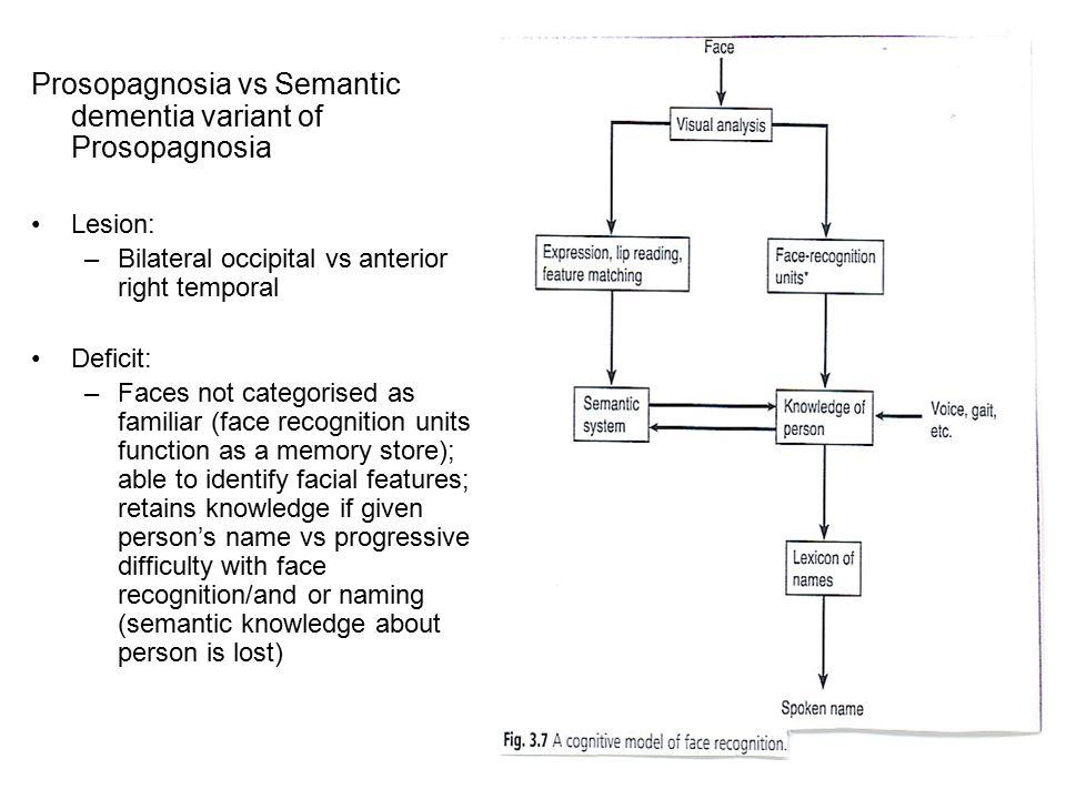 Prosopagnosia vs Semantic dementia variant of Prosopagnosia