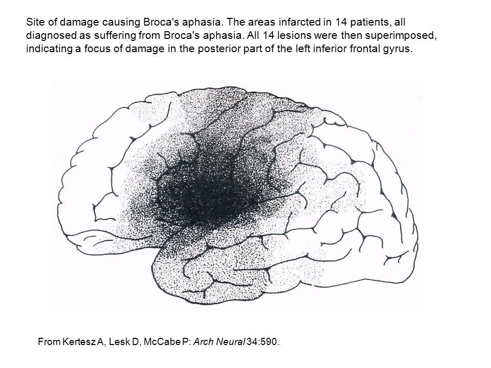 Site of damage causing Broca s aphasia