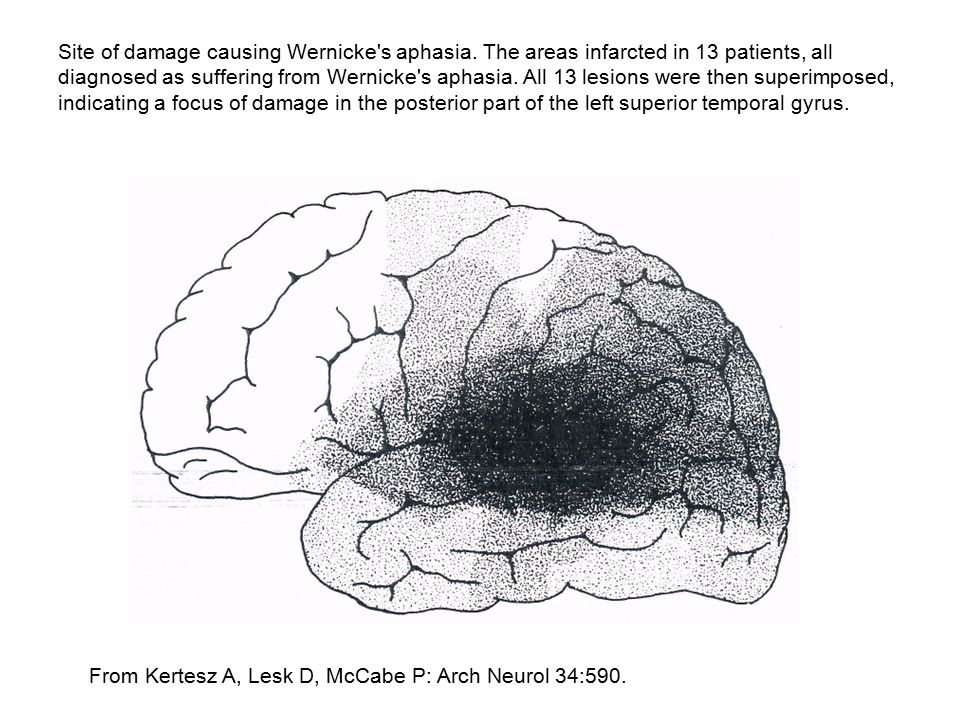 Site of damage causing Wernicke s aphasia
