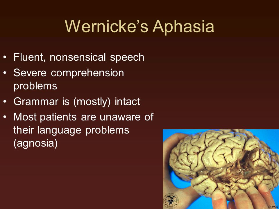 Wernicke's Aphasia Fluent, nonsensical speech