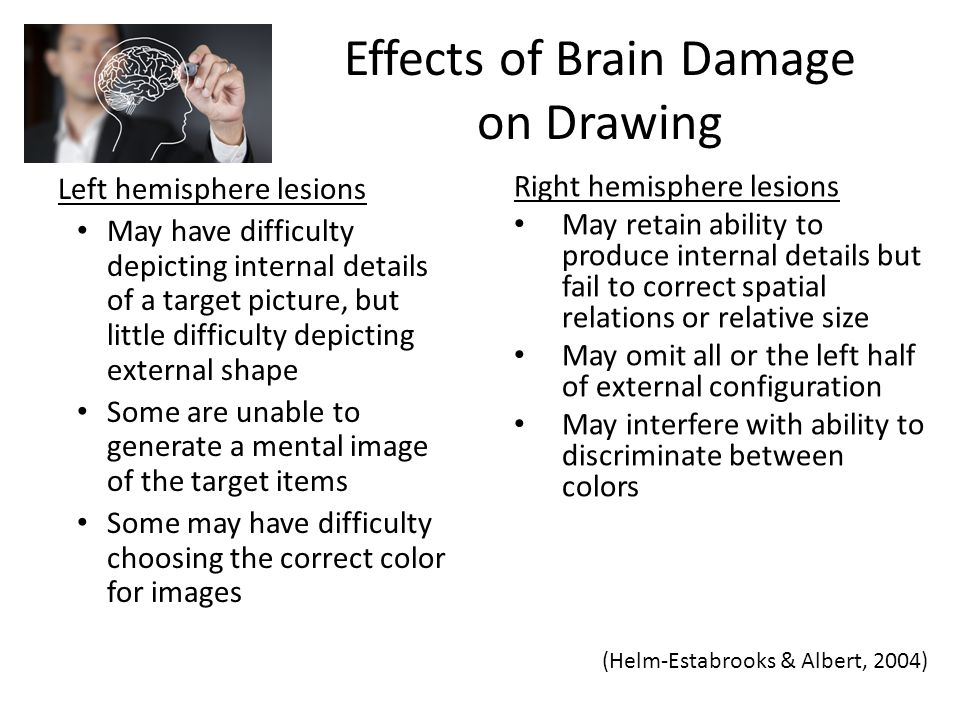 Effects of Brain Damage on Drawing