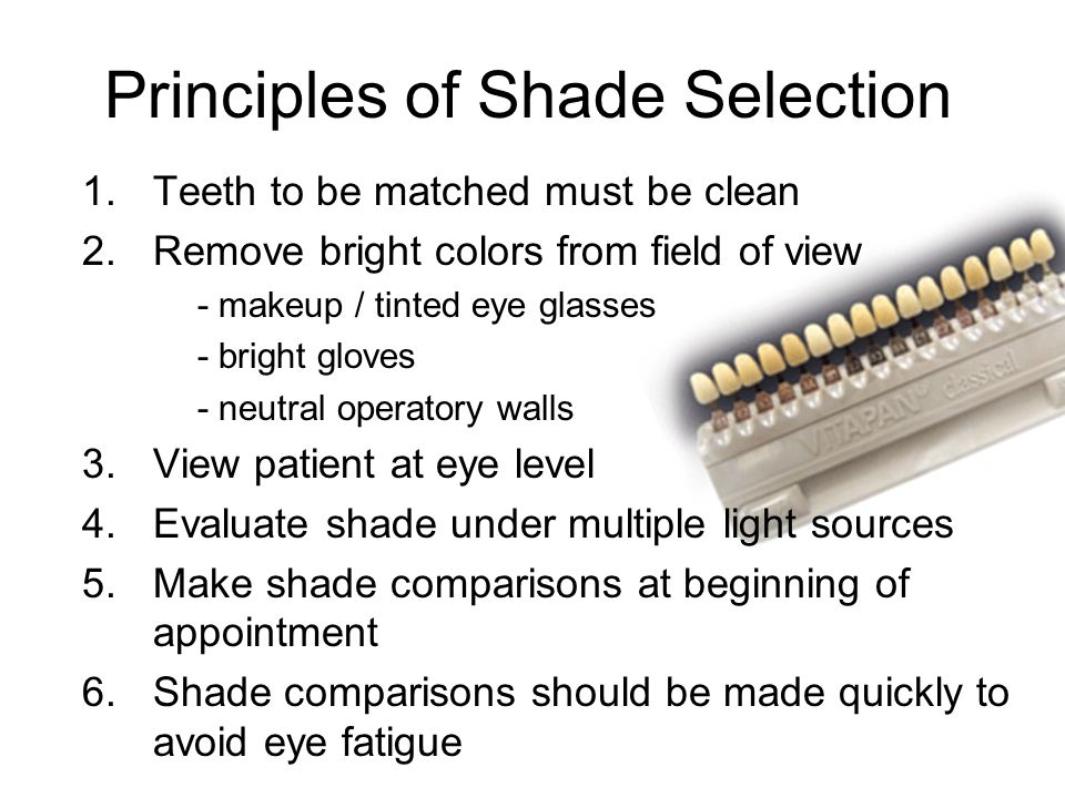 Principles of Shade Selection