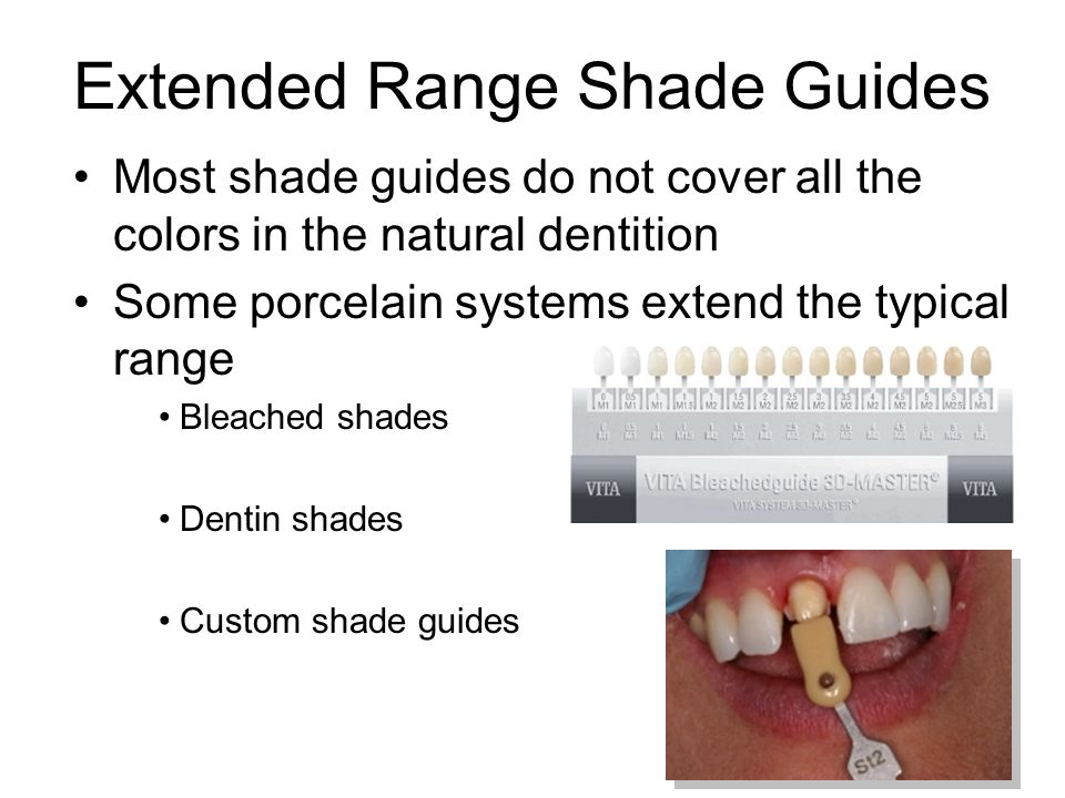 Extended Range Shade Guides