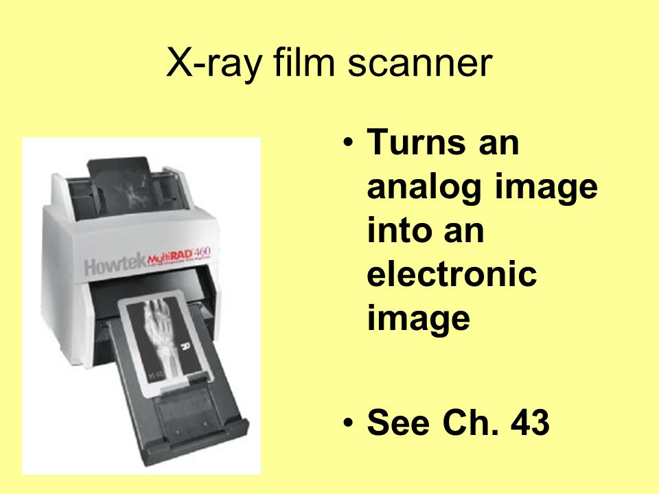 X-ray film scanner Turns an analog image into an electronic image