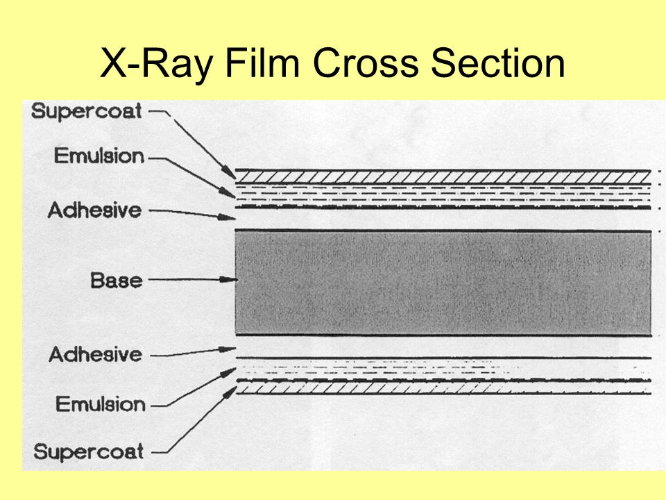 X-Ray Film Cross Section