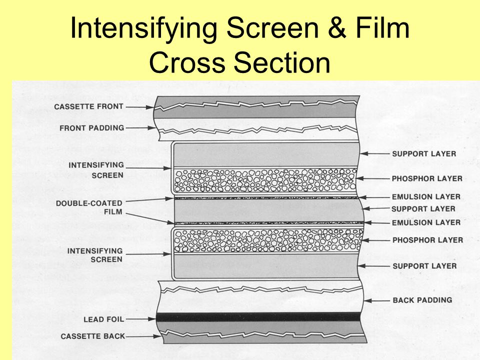 Intensifying Screen & Film Cross Section