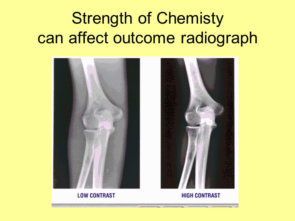 Strength of Chemisty can affect outcome radiograph