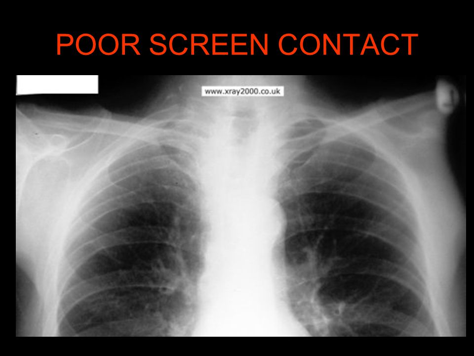 POOR SCREEN CONTACT