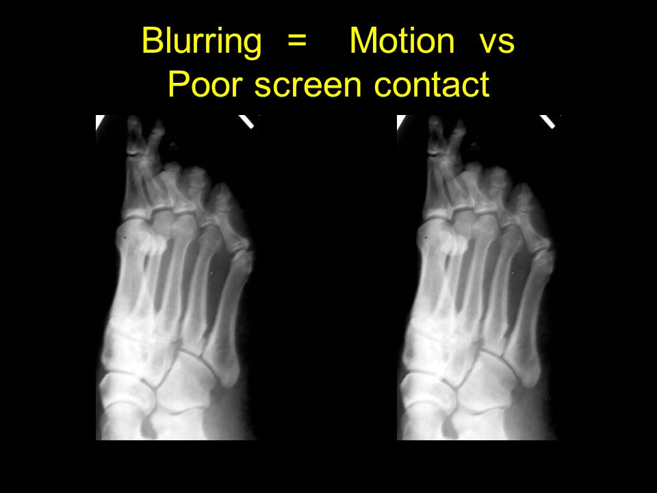 Blurring = Motion vs Poor screen contact