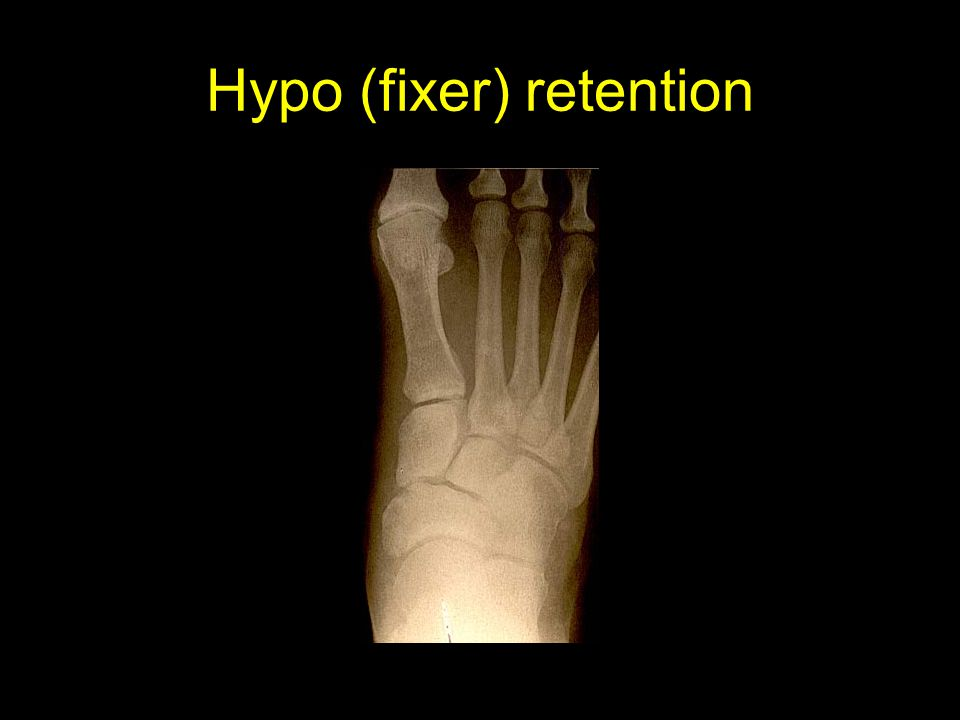 Hypo (fixer) retention