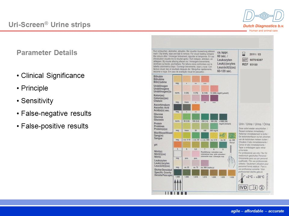 Uri-Screen® Urine strips