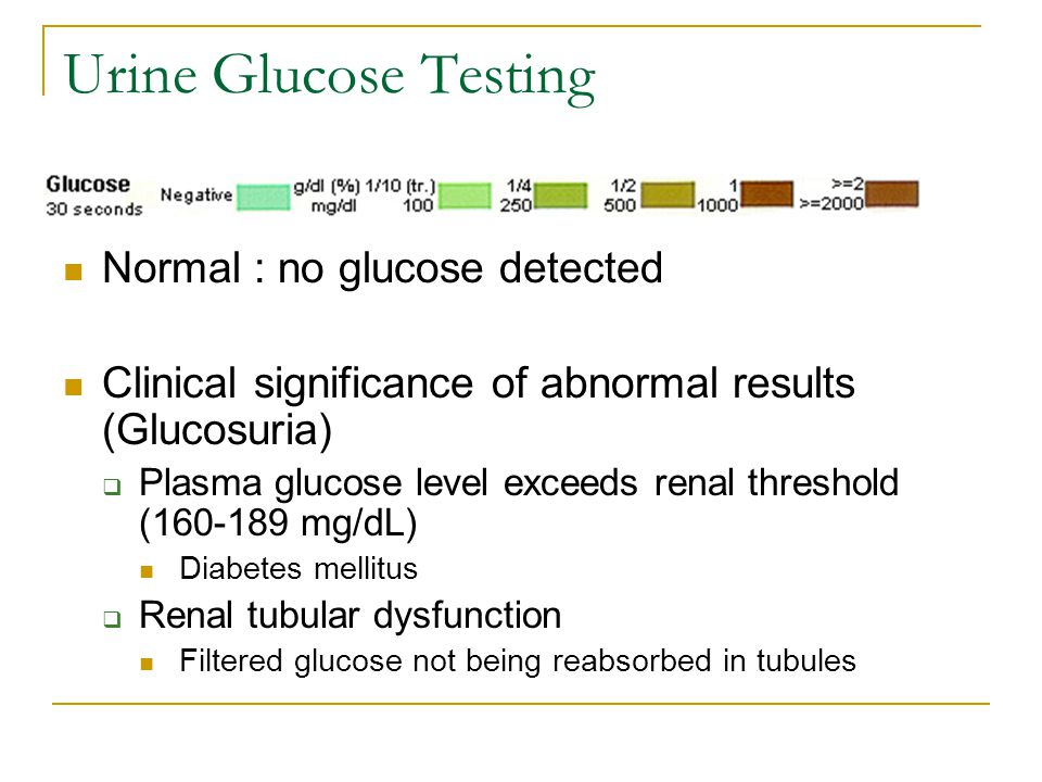 Urine Glucose Testing Normal : no glucose detected