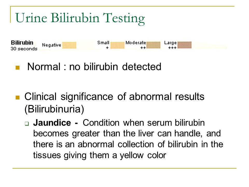 Urine Bilirubin Testing