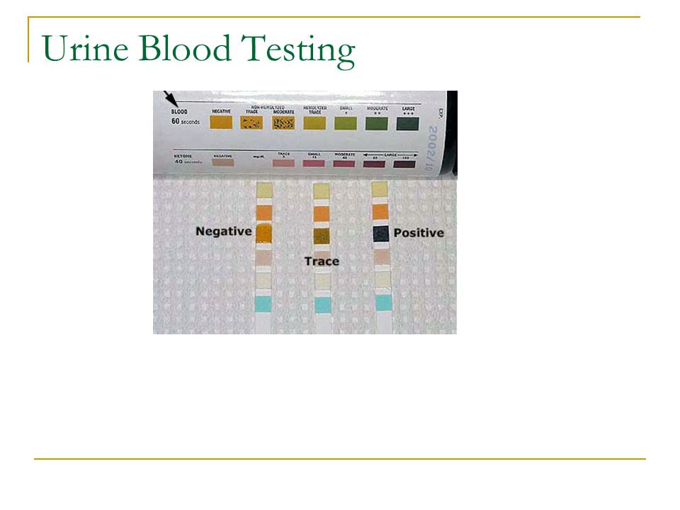 Urine Blood Testing
