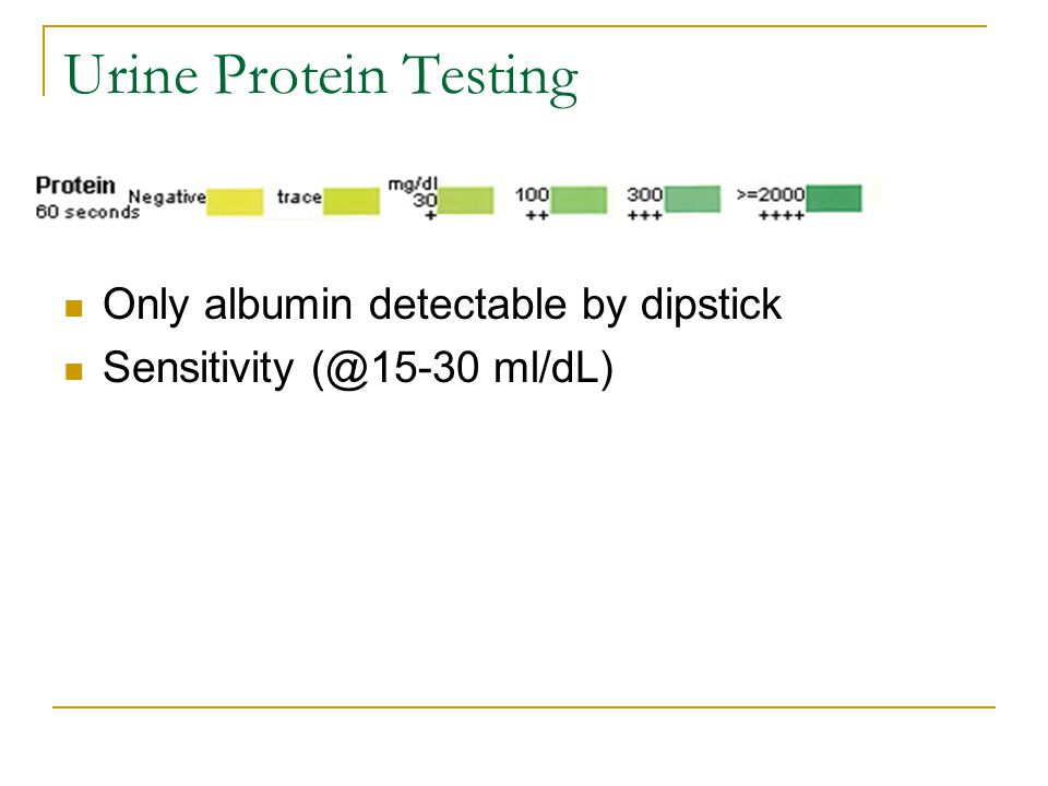 Urine Protein Testing Only albumin detectable by dipstick