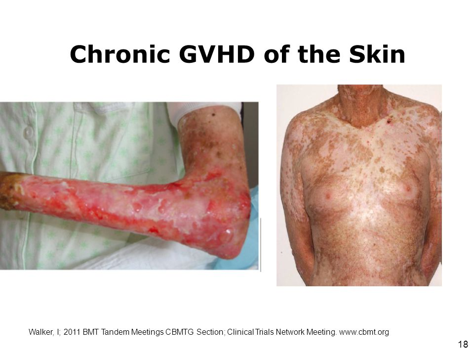 Chronic GVHD of the Skin