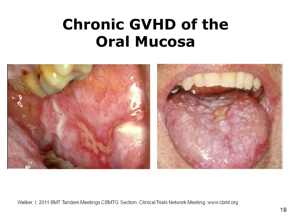 Chronic GVHD of the Oral Mucosa