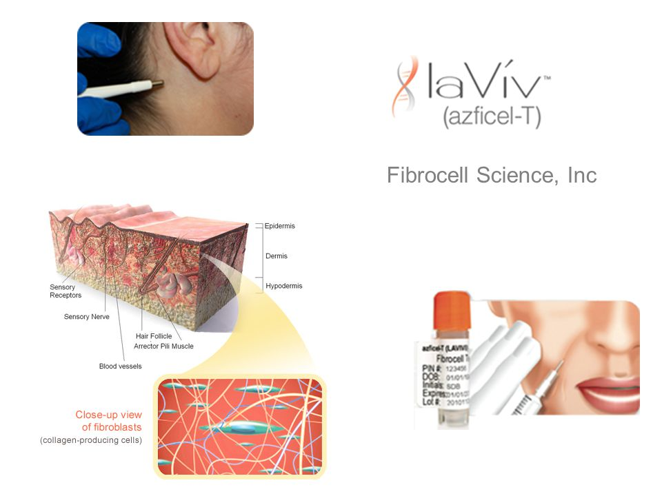Fibrocell Science, Inc