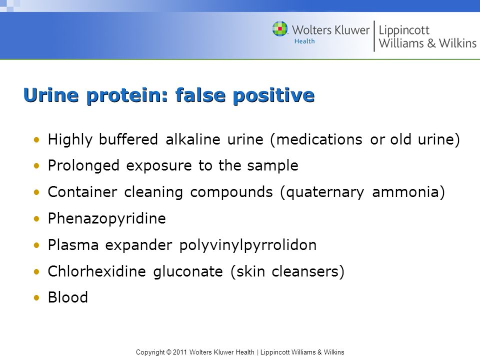 Urine protein: false positive