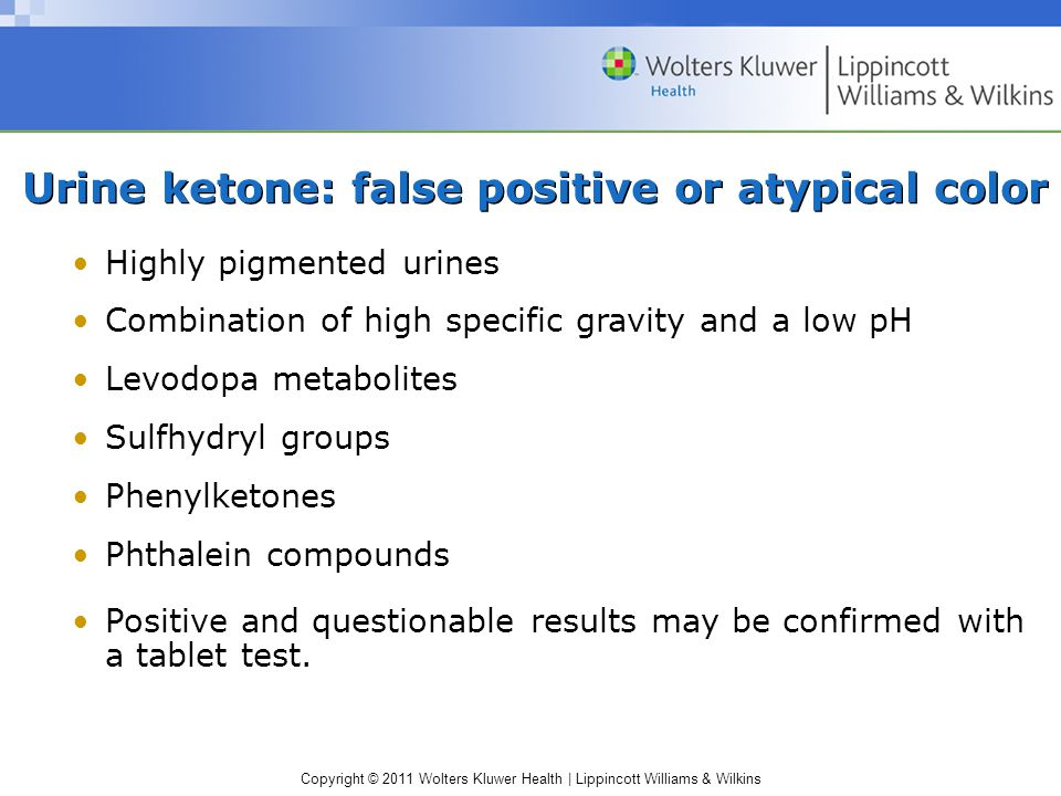 Urine ketone: false positive or atypical color