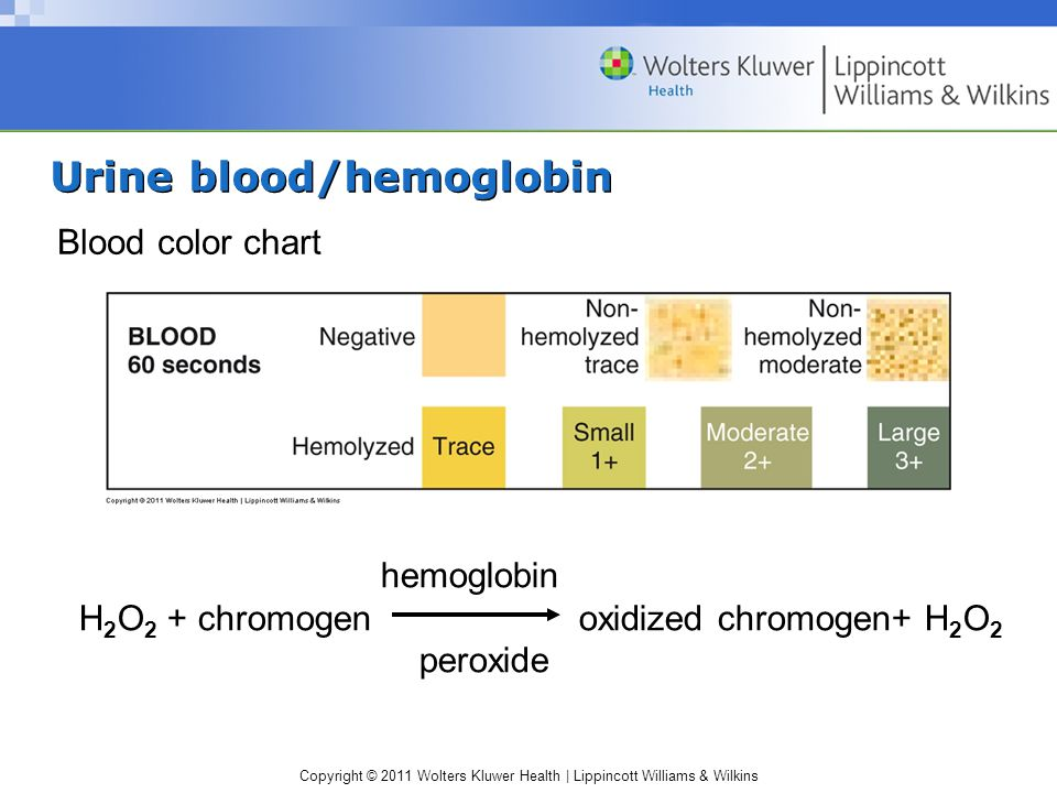Urine blood/hemoglobin