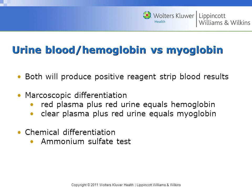 Urine blood/hemoglobin vs myoglobin