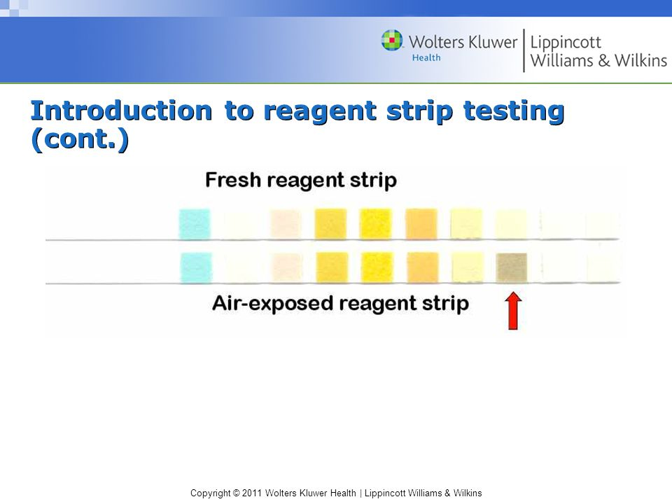 Introduction to reagent strip testing (cont.)