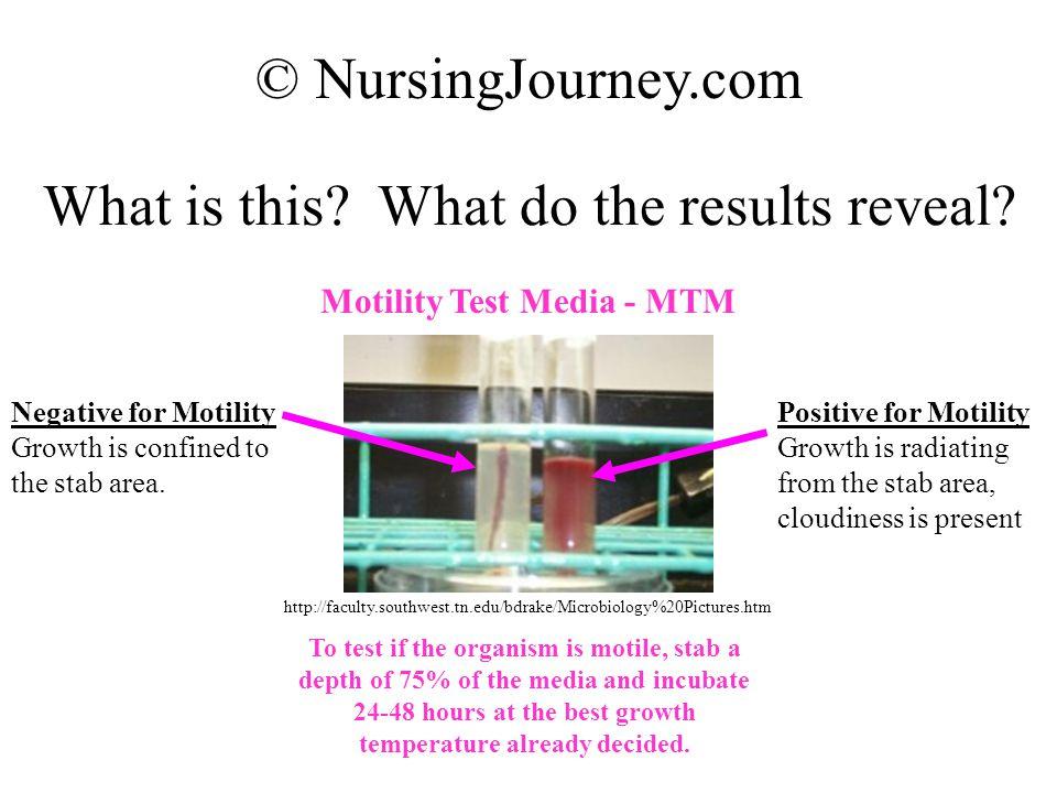 Motility Test Media - MTM
