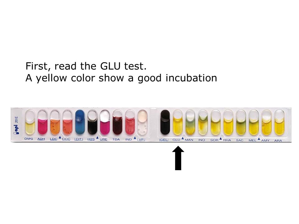 First, read the GLU test. A yellow color show a good incubation