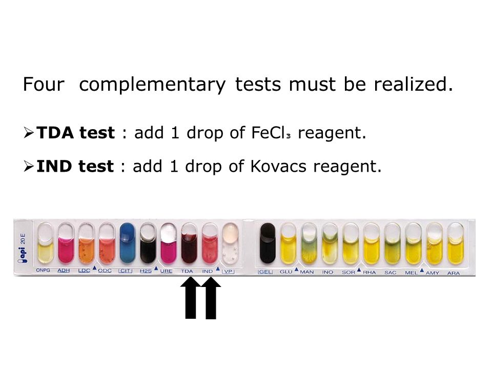 Four complementary tests must be realized.